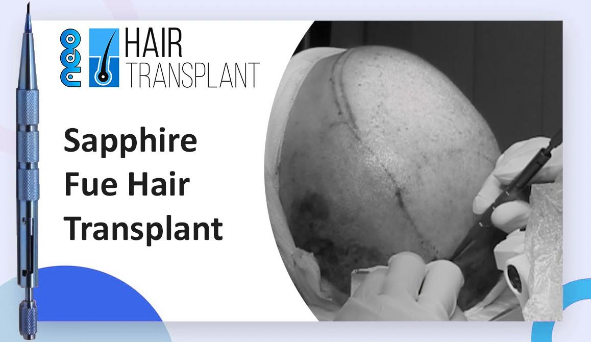 Sapphire Fue Hair Transplant Method |