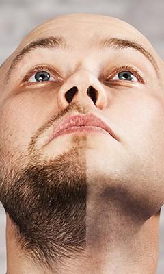 beard transplant neo hair transplant turkey  