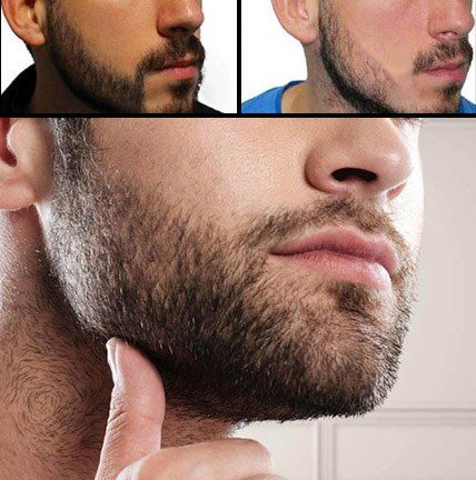 Before and After of Beard Transplant Process